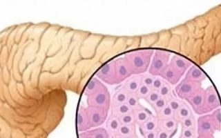 Что такое диффузные изменения паренхимы поджелудочной железы