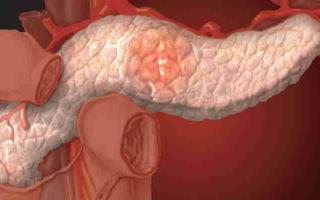 Какие есть классификации хронического панкреатита