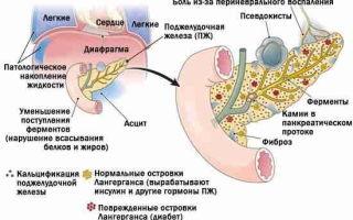 Какие бывают осложнения острого панкреатита