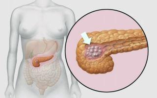 Симптомы инсулиномы поджелудочной железы