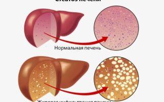 Что такое стеатоз печени и поджелудочной железы