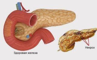 Что такое некроз поджелудочной железы