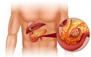Сколько живут при раке поджелудочной с метастазами в печень