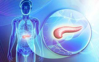 Что такое аденокарцинома поджелудочной железы