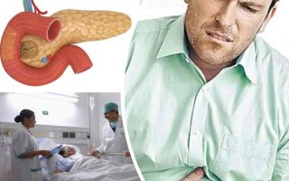 Панкреатит острый