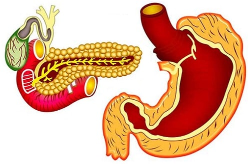 панкреатит гастрит