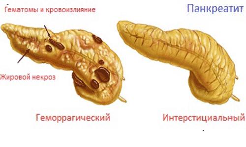 геморрагический панкреатит