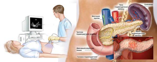 приступ панкреатита длительность