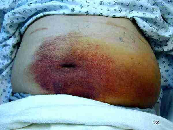 фиолетовые пятна на пупке при панкреонекрозе железы