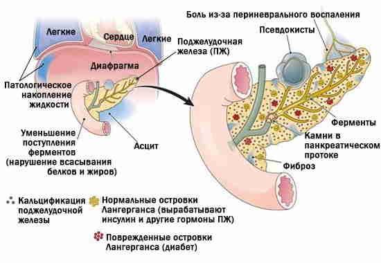 осложнение панкреатита