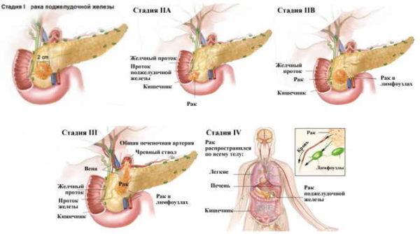 стадии рака поджелудочной