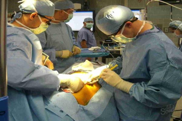 операция при панкреонекрозе