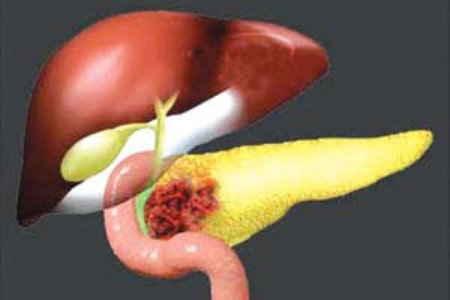 рак головки поджелудочной