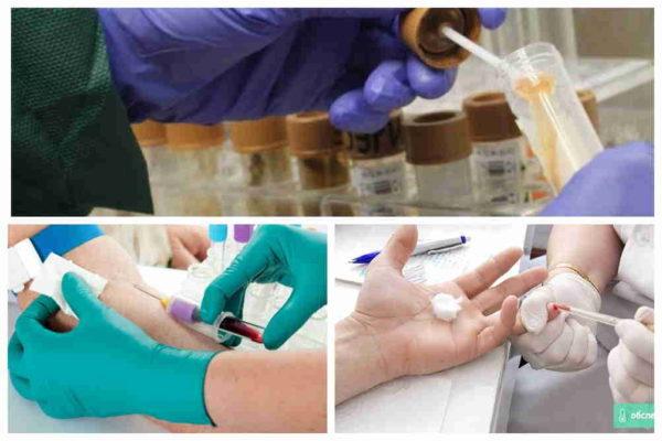 анализы при панкреатите и воспалении поджелудочной