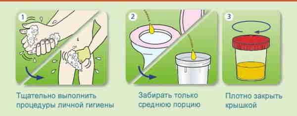 сбор урины по методу Нечипаренко