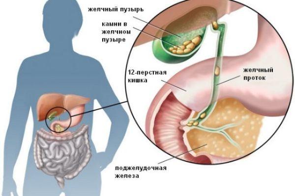 При диагнозе киста на поджелудочной железе лечение и диета выбираются по стадии заболевания