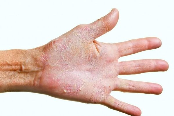 грибок кожи
