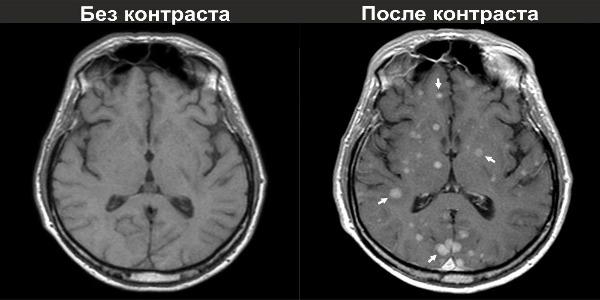 МРТ с контрастом и без
