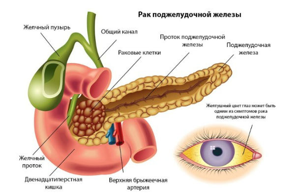 появление раковых клеток