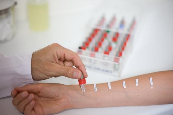 проверка пациента на аллергию