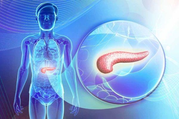 аденокарцинома поджелудочной железы